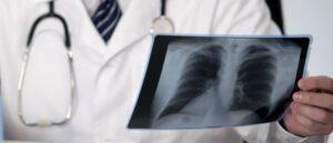 Pulmonolog przyjmie więcej chorych